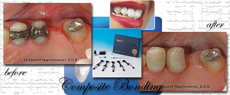Composite Bonding by Phuket Dentist at Phuket Dental Clinic in Phuket,Thailand